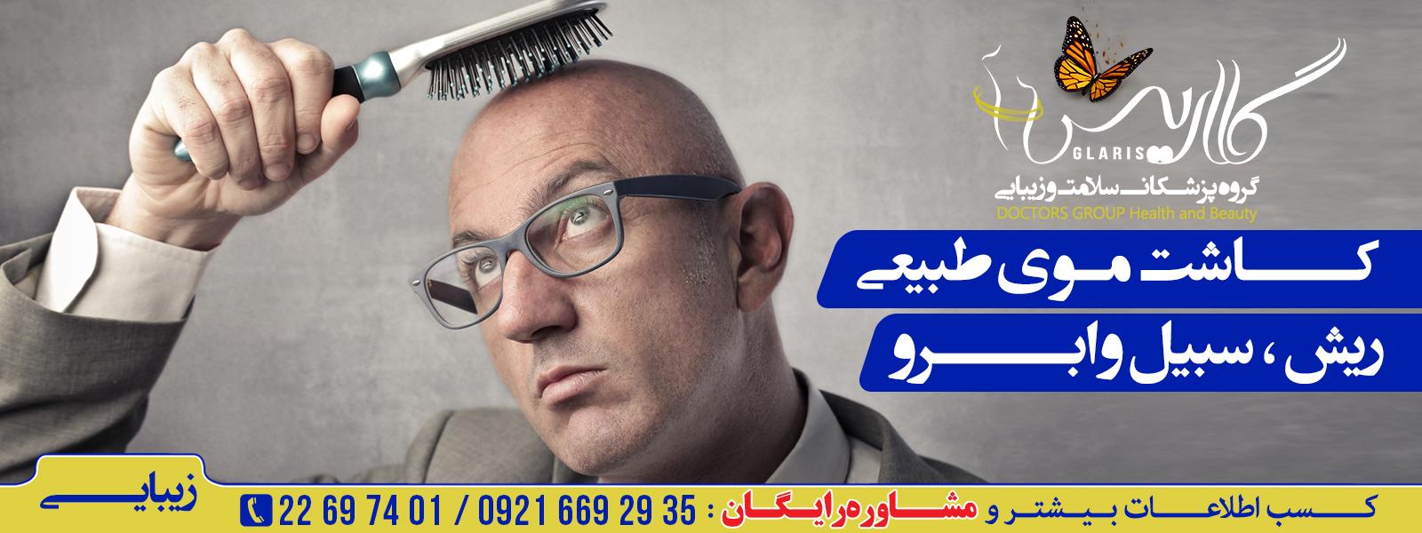کاشت مو  و ابرو طبیعی
